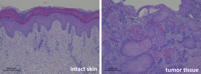 Comparison of intact skin cells versus skin tumour cells