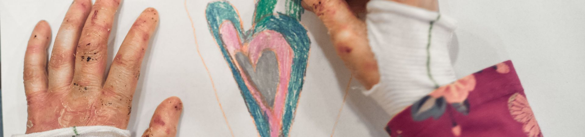 Child living with EB draws a heart